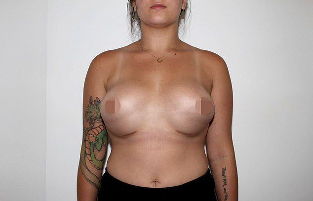 【悲報】オーストラリアの豊胸まんさん、手術失敗でとんでもないおっぱいにされる・・・・・(画像)・6枚目