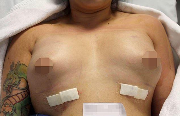 【悲報】オーストラリアの豊胸まんさん、手術失敗でとんでもないおっぱいにされる・・・・・(画像)・7枚目
