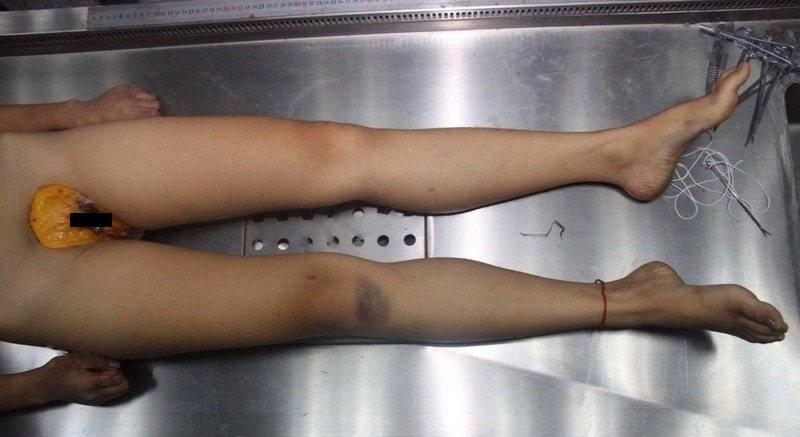 【閲覧注意】中国でレイプされた少女、おっぱいと膣を切除された状態で発見される・・・・・(画像)・7枚目