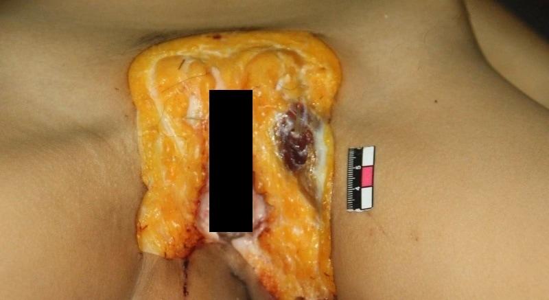 【閲覧注意】中国でレイプされた少女、おっぱいと膣を切除された状態で発見される・・・・・(画像)・10枚目