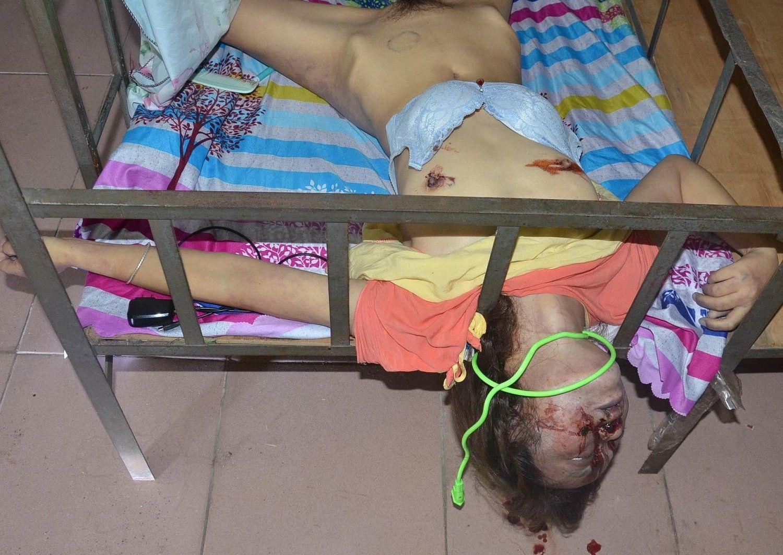 【閲覧注意】レイプされ殺された中国人少女、おっぱいと性器をザクザク刺されてる・・・・・(画像)・5枚目