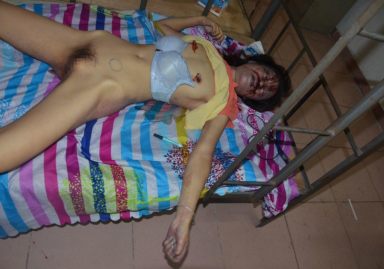 【閲覧注意】レイプされ殺された中国人少女、おっぱいと性器をザクザク刺されてる・・・・・(画像)・8枚目