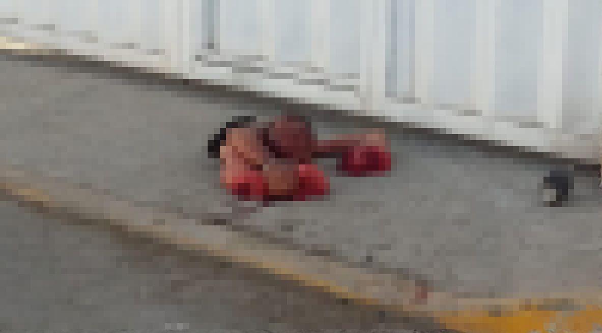 【グロ注意】メキシコの麻薬カルテルさん、クリスマスにとんでもないモノを袋に入れて街に放置・・・・・(画像)・3枚目