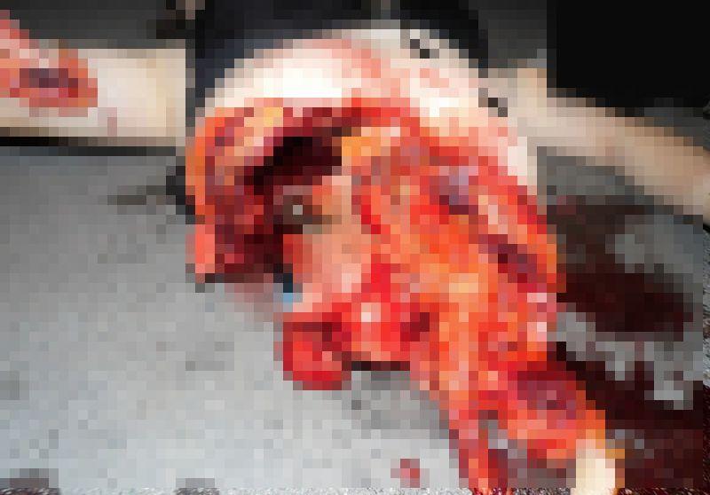 【自殺】建物から飛び降りて鉄柵に衝突したまんさん、バラバラになる・・・・・(画像)・4枚目