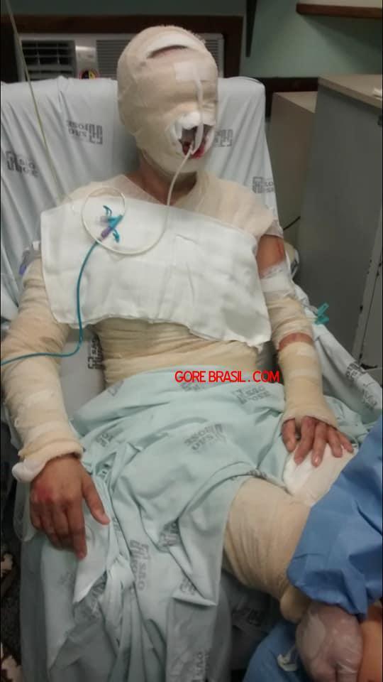 【悲劇】別れた夫から濃硫酸を顔にぶっ掛けられた女性、全身ケロイド状態になる・・・・・(画像)・3枚目