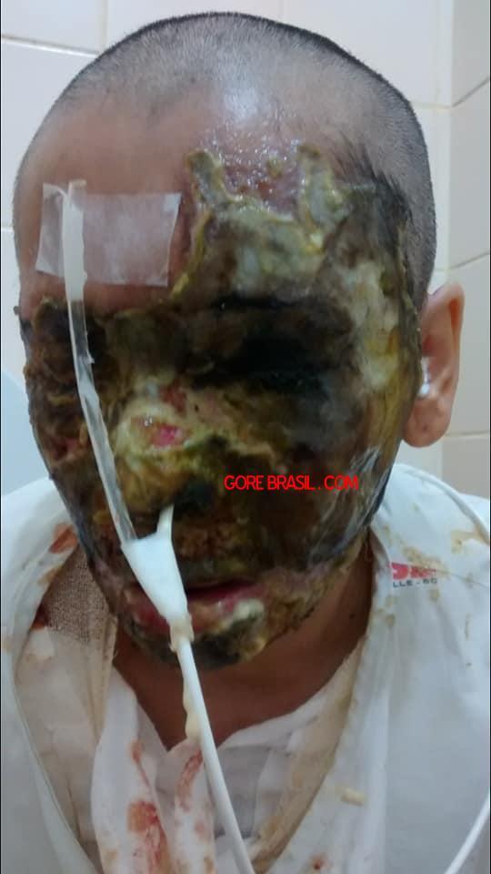 【悲劇】別れた夫から濃硫酸を顔にぶっ掛けられた女性、全身ケロイド状態になる・・・・・(画像)・5枚目