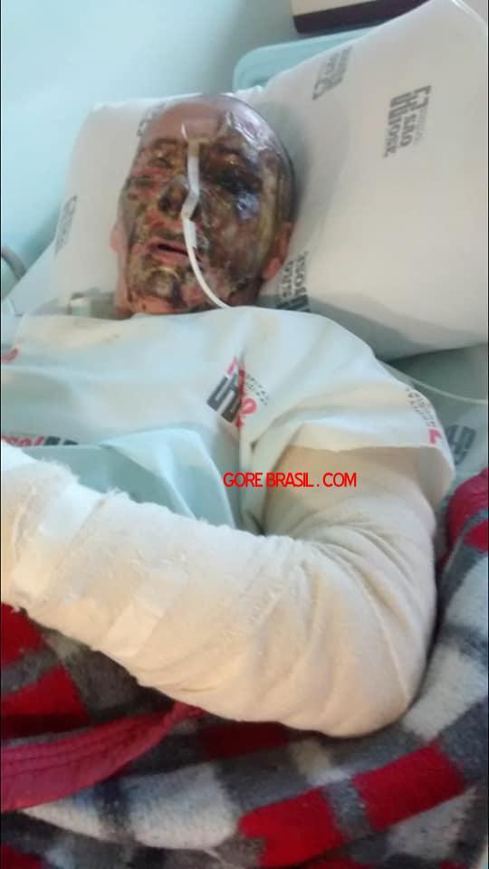 【悲劇】別れた夫から濃硫酸を顔にぶっ掛けられた女性、全身ケロイド状態になる・・・・・(画像)・7枚目