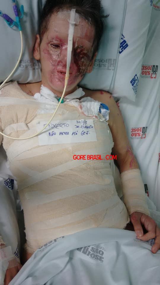 【悲劇】別れた夫から濃硫酸を顔にぶっ掛けられた女性、全身ケロイド状態になる・・・・・(画像)・9枚目