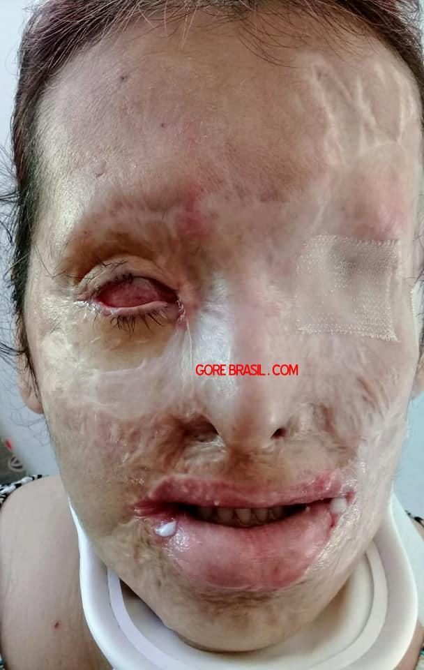 【悲劇】別れた夫から濃硫酸を顔にぶっ掛けられた女性、全身ケロイド状態になる・・・・・(画像)・10枚目