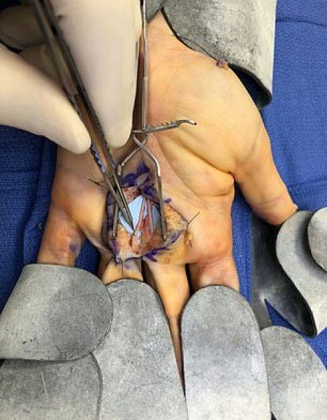 【閲覧注意】アボカドの皮むきに失敗したまんさん、骨が見えるほどざっくり手を切り裂く!!(画像)・2枚目