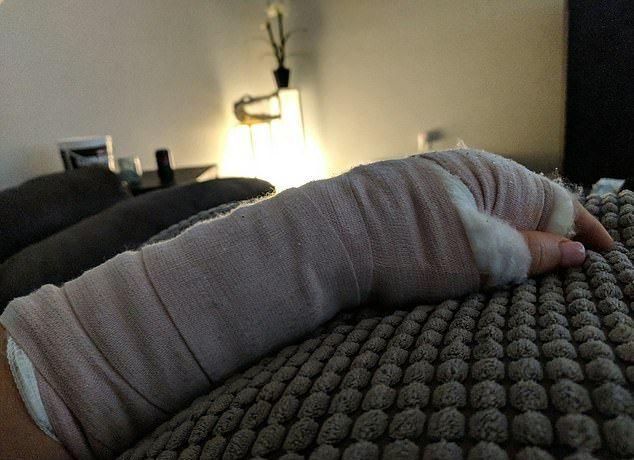 【閲覧注意】アボカドの皮むきに失敗したまんさん、骨が見えるほどざっくり手を切り裂く!!(画像)・4枚目