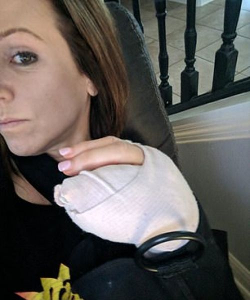 【閲覧注意】アボカドの皮むきに失敗したまんさん、骨が見えるほどざっくり手を切り裂く!!(画像)・5枚目