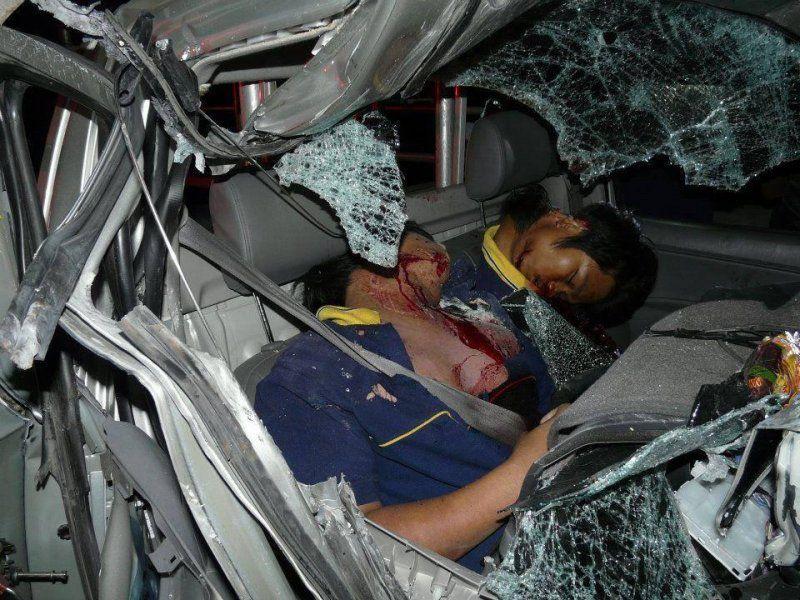 【グロ注意】高速で事故った人、車内にもかかわらずとんでもない所から頭がザックリいってしまう・・・・・(画像)・2枚目