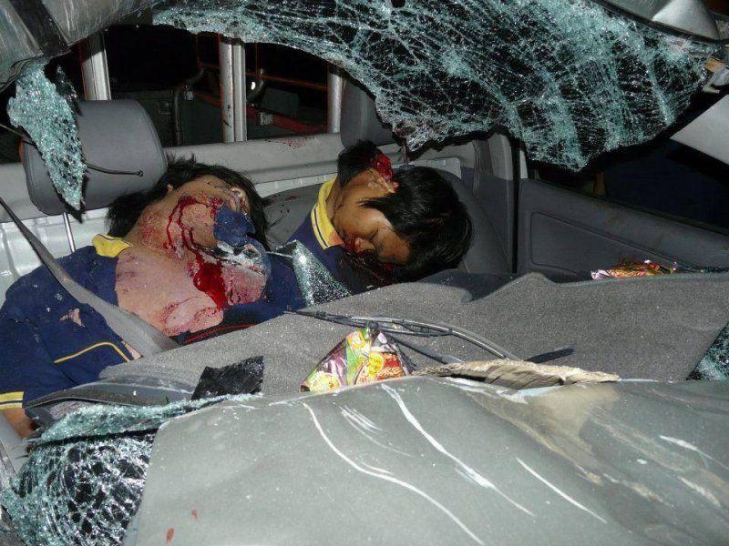 【グロ注意】高速で事故った人、車内にもかかわらずとんでもない所から頭がザックリいってしまう・・・・・(画像)・3枚目