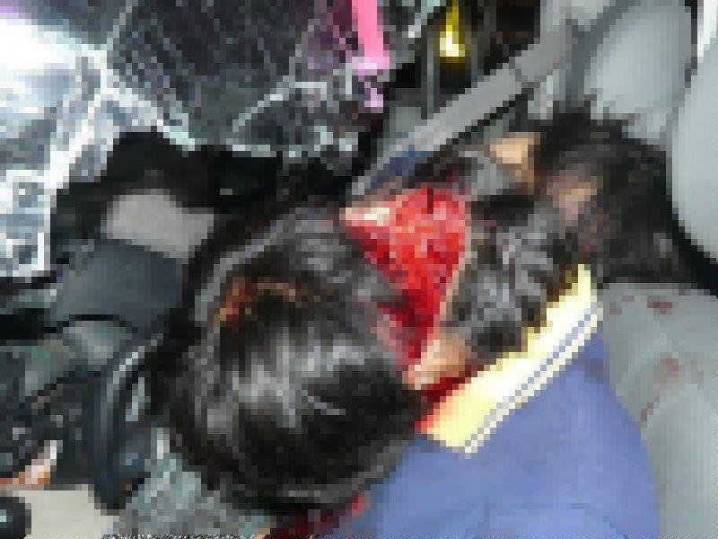 【グロ注意】高速で事故った人、車内にもかかわらずとんでもない所から頭がザックリいってしまう・・・・・(画像)・5枚目