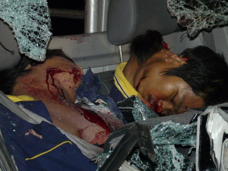 【グロ注意】高速で事故った人、車内にもかかわらずとんでもない所から頭がザックリいってしまう・・・・・(画像)・6枚目