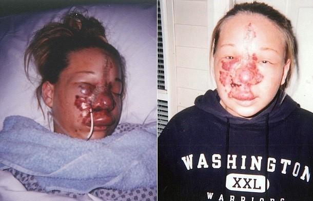 【ショッキング】先天性の病気治療の為皮膚の下にシリコンボールを挿入した女性、インパクト強すぎ・・・・・(画像)・2枚目