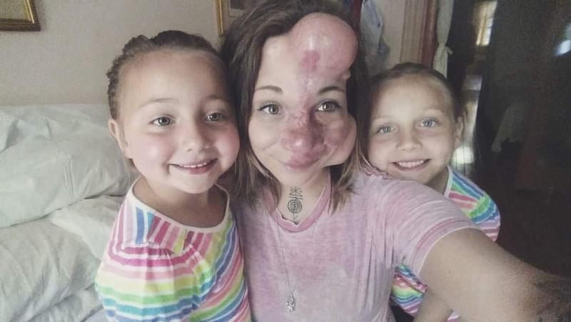 【ショッキング】先天性の病気治療の為皮膚の下にシリコンボールを挿入した女性、インパクト強すぎ・・・・・(画像)・3枚目