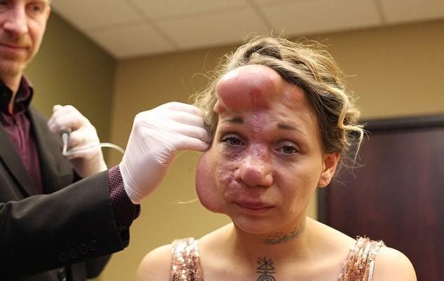 【ショッキング】先天性の病気治療の為皮膚の下にシリコンボールを挿入した女性、インパクト強すぎ・・・・・(画像)・4枚目