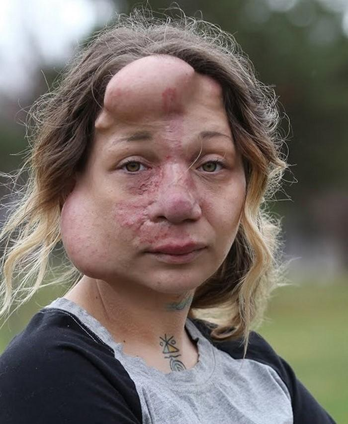 【ショッキング】先天性の病気治療の為皮膚の下にシリコンボールを挿入した女性、インパクト強すぎ・・・・・(画像)・5枚目