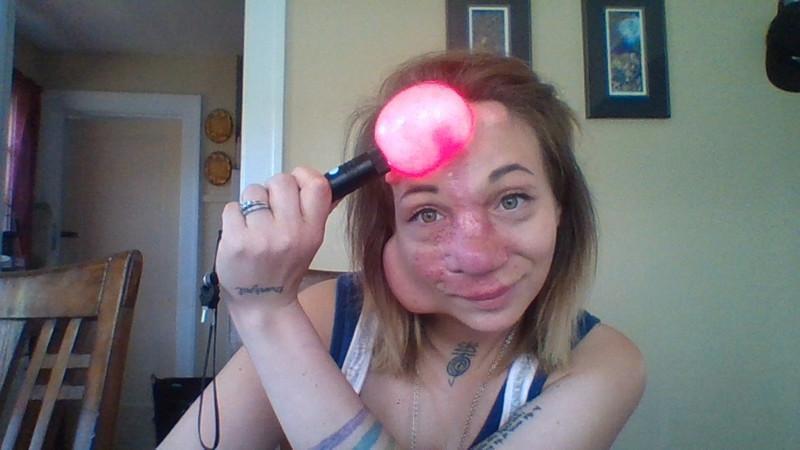 【ショッキング】先天性の病気治療の為皮膚の下にシリコンボールを挿入した女性、インパクト強すぎ・・・・・(画像)・6枚目