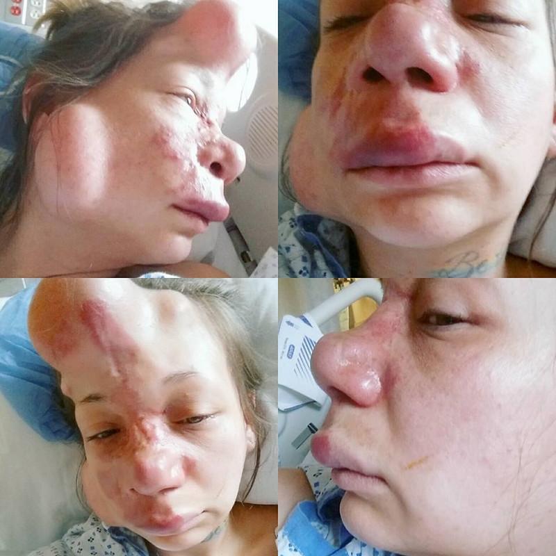 【ショッキング】先天性の病気治療の為皮膚の下にシリコンボールを挿入した女性、インパクト強すぎ・・・・・(画像)・8枚目