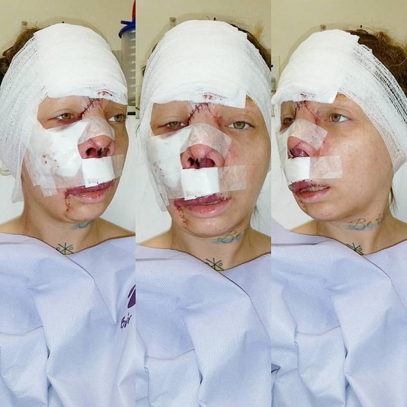 【ショッキング】先天性の病気治療の為皮膚の下にシリコンボールを挿入した女性、インパクト強すぎ・・・・・(画像)・11枚目