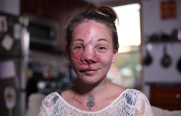 【ショッキング】先天性の病気治療の為皮膚の下にシリコンボールを挿入した女性、インパクト強すぎ・・・・・(画像)・12枚目