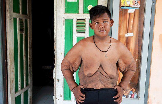 【衝撃】日本のTVにもちょくちょく出てるアジアのデブ少年アリヤ・ペルマナくん、ダイエット成功も皮が余りまくる・・・・・(画像)・1枚目