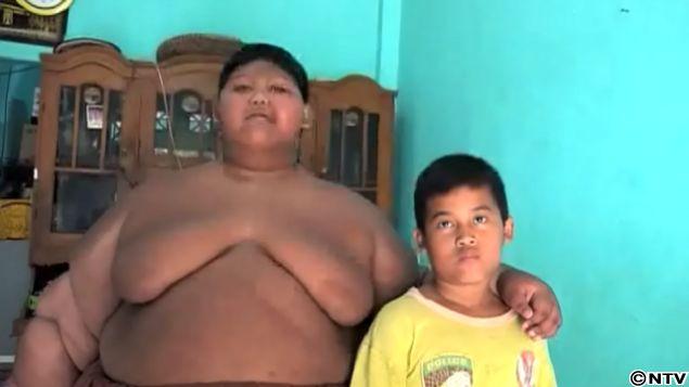 【衝撃】日本のTVにもちょくちょく出てるアジアのデブ少年アリヤ・ペルマナくん、ダイエット成功も皮が余りまくる・・・・・(画像)・9枚目