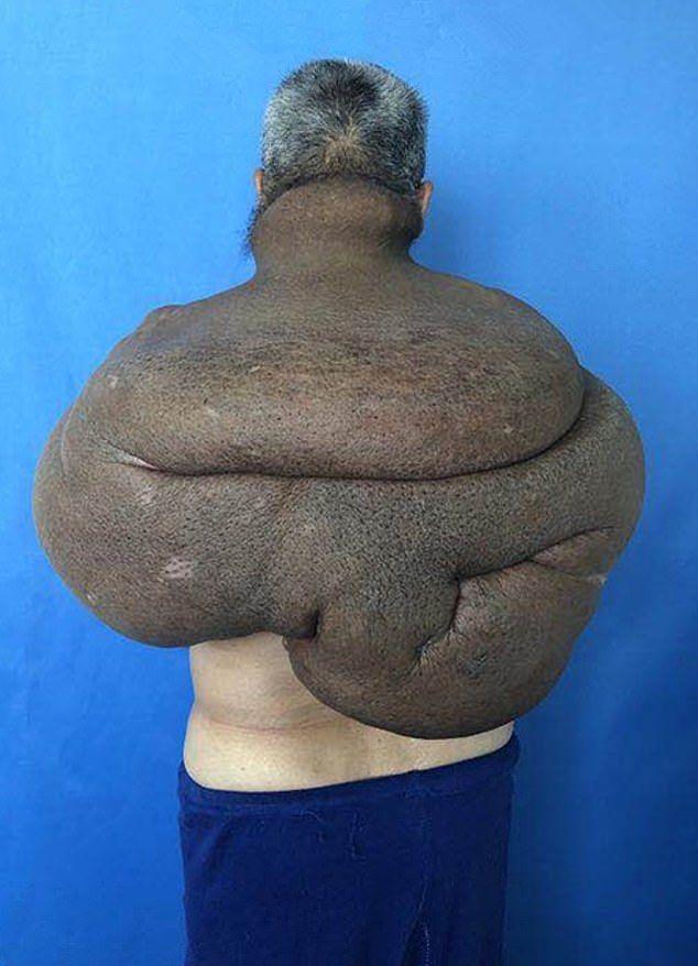 【朗報】30年かけて育った直径85㎝重さ15㎏の巨大腫瘍、医師100人の協力で遂に切除される!!(画像)・1枚目