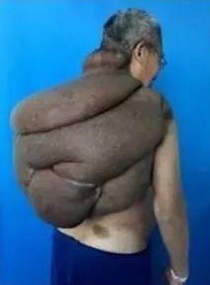 【朗報】30年かけて育った直径85㎝重さ15㎏の巨大腫瘍、医師100人の協力で遂に切除される!!(画像)・2枚目