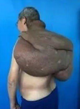 【朗報】30年かけて育った直径85㎝重さ15㎏の巨大腫瘍、医師100人の協力で遂に切除される!!(画像)・3枚目