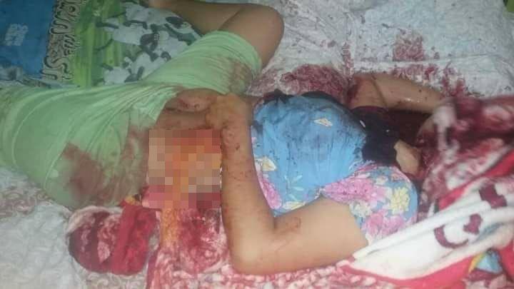 【猟奇殺人】ココナッツを割る為に隣人にマチューテを借りたインドネシア人男性、妊娠中の妻の腹を掻っ捌く!!(画像)・6枚目