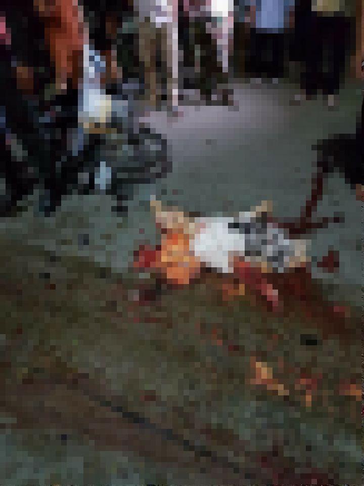 【閲覧注意】バイク事故で全身を強く打った女性、一瞬でバラバラ遺体になる・・・・・(画像)・1枚目
