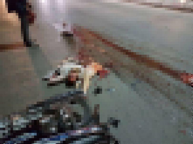 【閲覧注意】バイク事故で全身を強く打った女性、一瞬でバラバラ遺体になる・・・・・(画像)・2枚目
