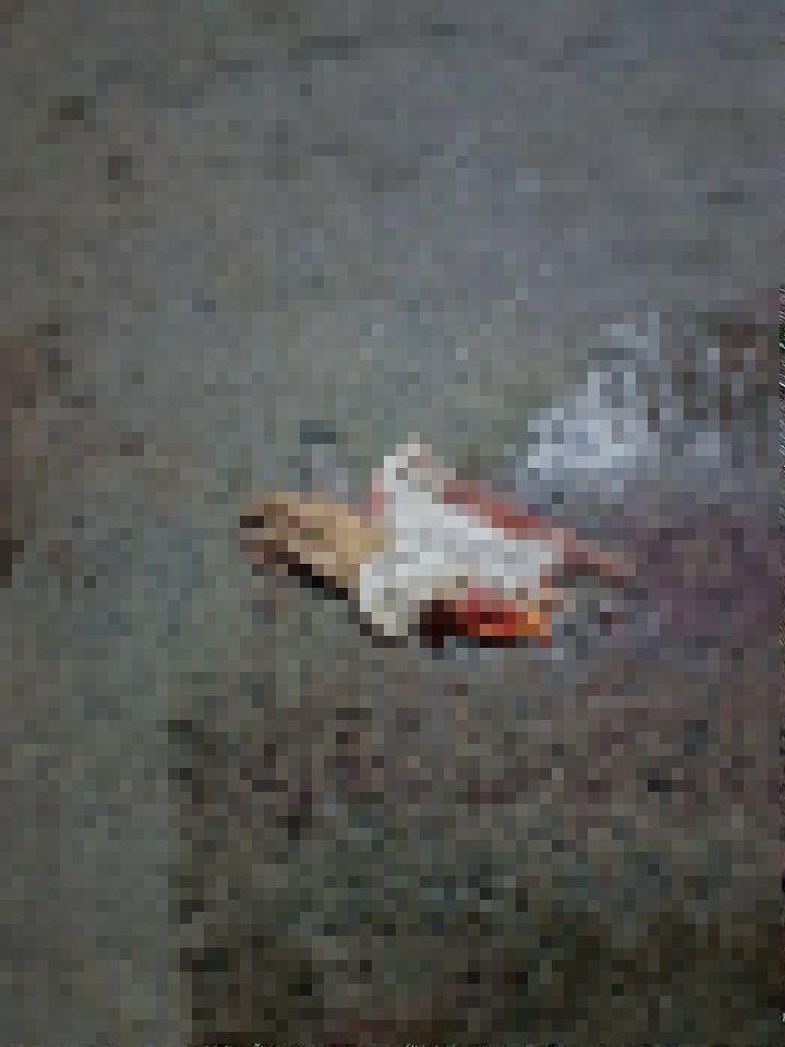 【閲覧注意】バイク事故で全身を強く打った女性、一瞬でバラバラ遺体になる・・・・・(画像)・3枚目
