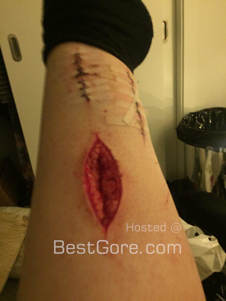 【衝撃】海外の薬物中毒者、自傷行為し過ぎて骨に達するレベルの傷を腕に付ける!!・2枚目