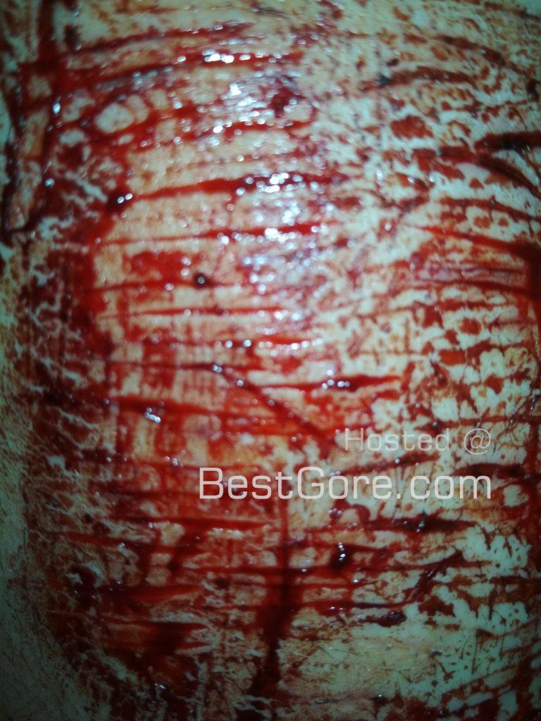 【メンヘラ注意】海外の美術学校に通う超メンヘラまんさん、とんでもない自傷行為をしてしまう・・・・・(画像)・7枚目