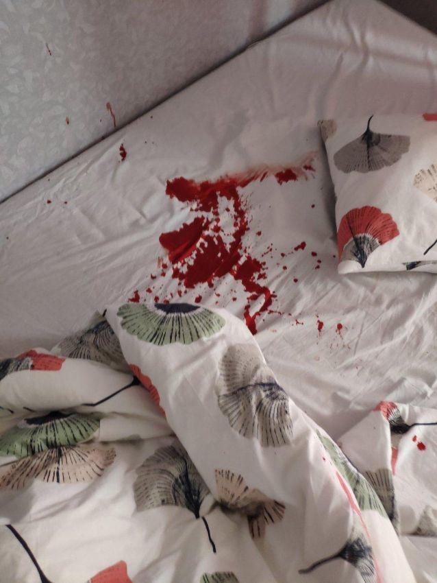 【怖過ぎ】彼女とバックでハメてた男性、穴からズレてチンコがへし折れる!!(画像)・1枚目