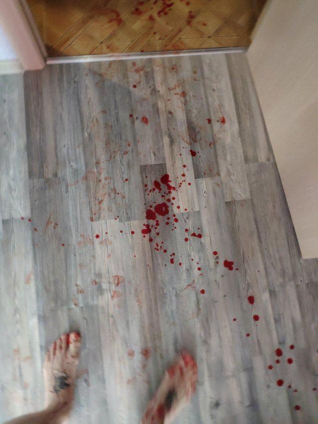【怖過ぎ】彼女とバックでハメてた男性、穴からズレてチンコがへし折れる!!(画像)・2枚目