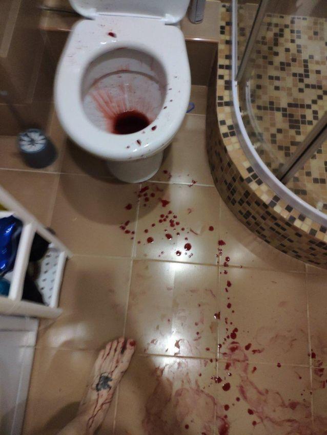 【怖過ぎ】彼女とバックでハメてた男性、穴からズレてチンコがへし折れる!!(画像)・4枚目