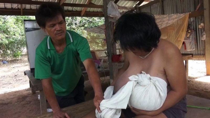 【巨乳症おばさん】タイで発見された巨乳症のおばさん御年46歳、せめてあと20年若ければ・・・・・(画像)・4枚目