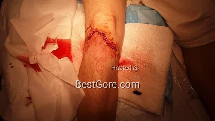 【マジキチ】陽キャ外人さん、息子の足がザックリ怪我した画像をネットにUPして傷口マニアを歓喜させる!!・3枚目