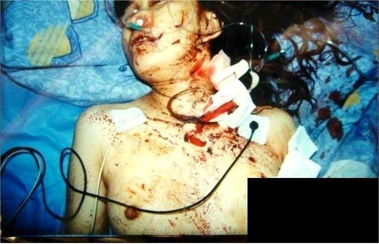 【胸糞注意】レイプされ乳首を噛みちぎられた少女、この後亡くなる・・・・・(画像)・1枚目