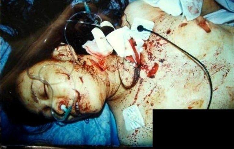 【胸糞注意】レイプされ乳首を噛みちぎられた少女、この後亡くなる・・・・・(画像)・2枚目