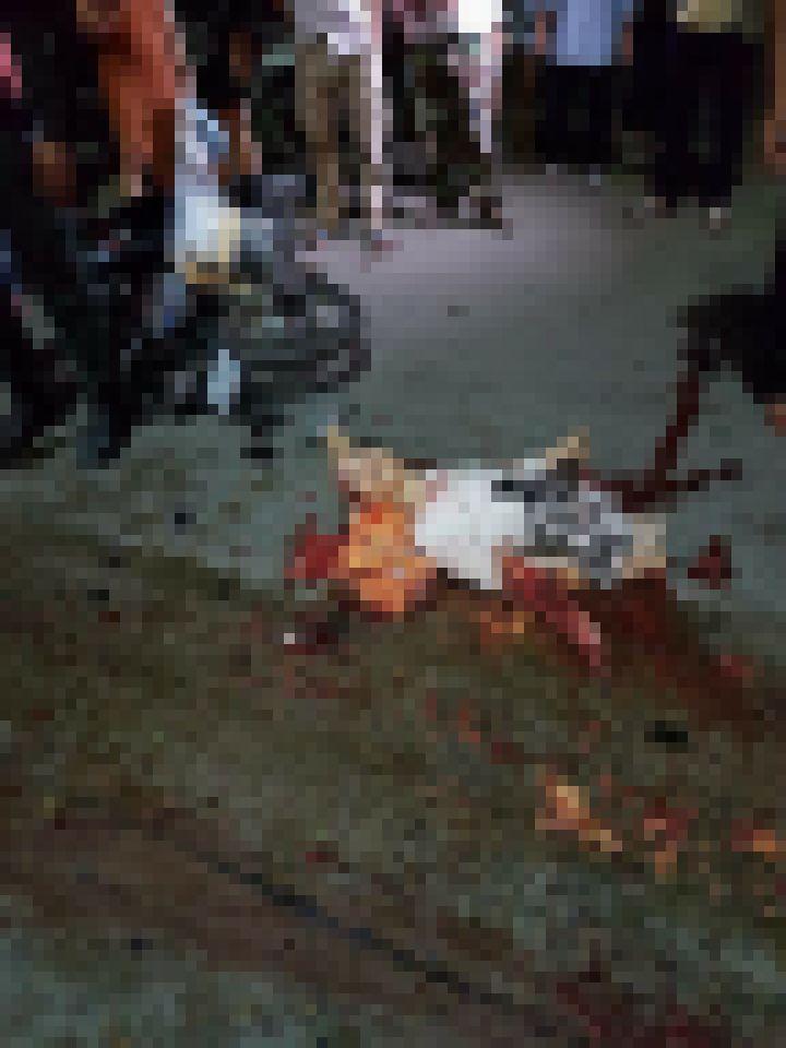 【グロ注意】バイクで交通事故に遭った女性、身体がバラバラのダルマ状態になってしまう・・・・・(画像)・1枚目