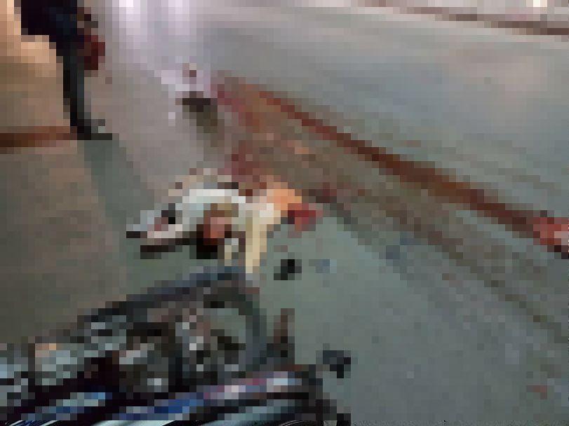 【グロ注意】バイクで交通事故に遭った女性、身体がバラバラのダルマ状態になってしまう・・・・・(画像)・2枚目