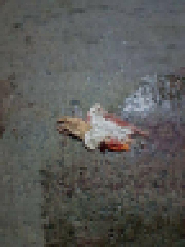 【グロ注意】バイクで交通事故に遭った女性、身体がバラバラのダルマ状態になってしまう・・・・・(画像)・3枚目