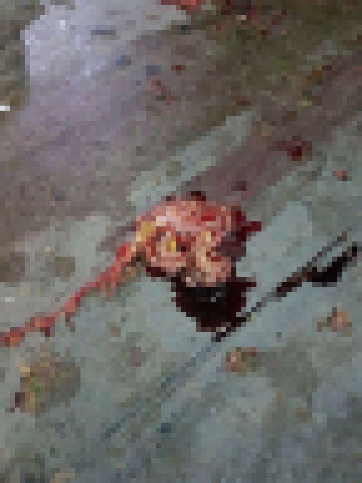 【グロ注意】バイクで交通事故に遭った女性、身体がバラバラのダルマ状態になってしまう・・・・・(画像)・4枚目